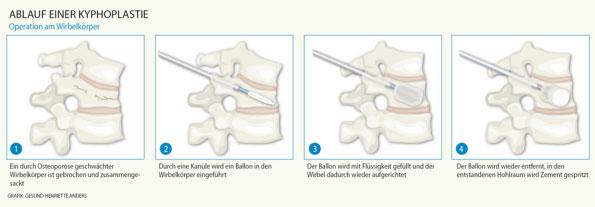 Tell-Klinik :: Verkrümmungen der Wirbelsäule (Skoliosen, Kyphosen ...