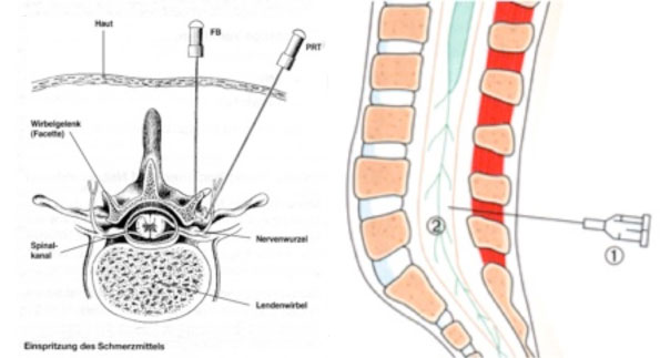 Tell-Klinik :: Bandscheibenvorfall an der Lendenwirbelsäule (